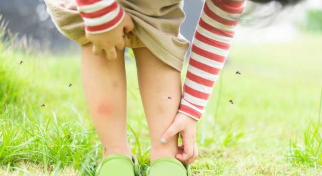 Punture di insetto: i rimedi migliori