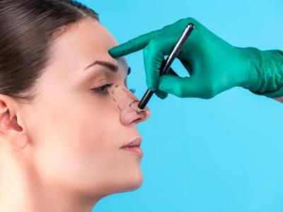 Cosa sapere prima di rifarsi il naso