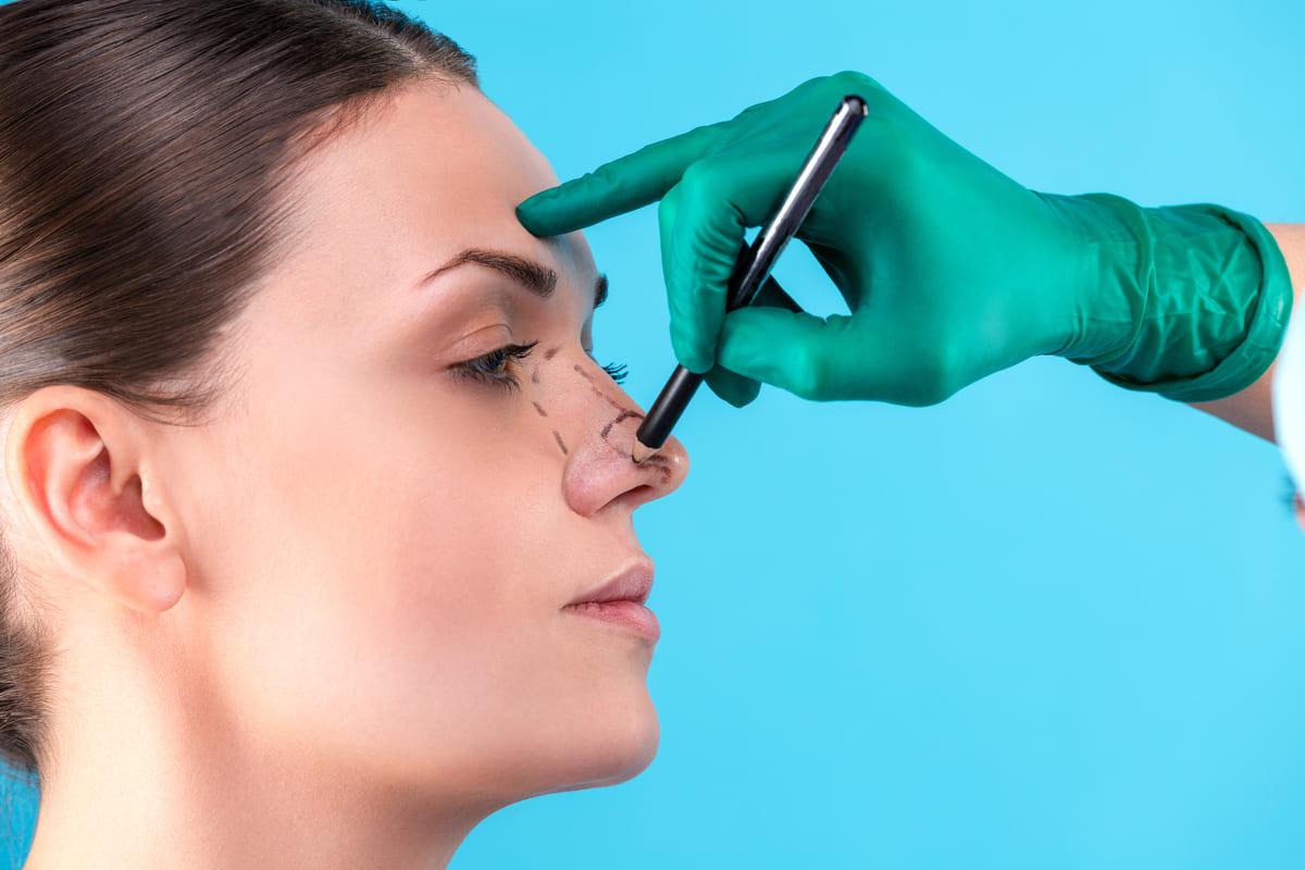 chirurgo estetico naso rinoplastica