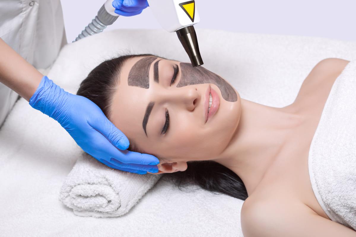 trattamento viso peeling laser