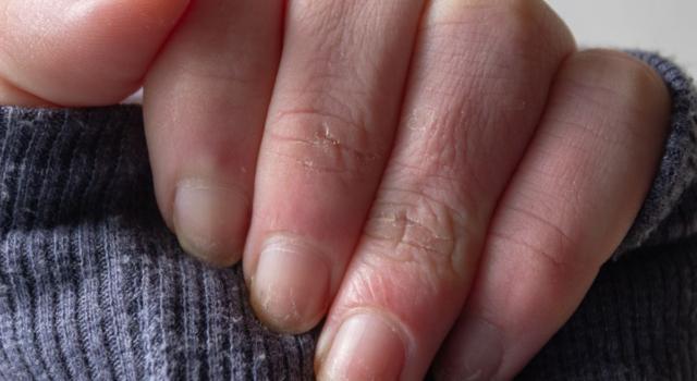 Come curare geloni mani con omeopatia
