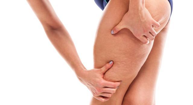 Come prevenire la cellulite: il segreto è nella dieta, ma non solo!