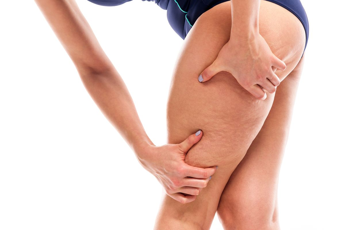 gambe donna cellulite