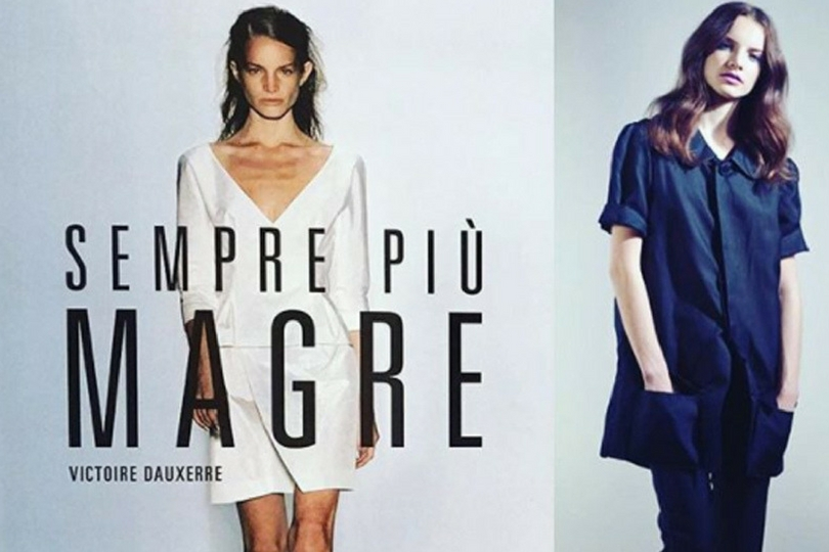 La modella Victoire Dauxerre denuncia l'anoressia