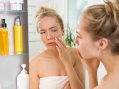 Dieta anti brufoli: tutti i cibi sì e no per sconfiggere l'acne