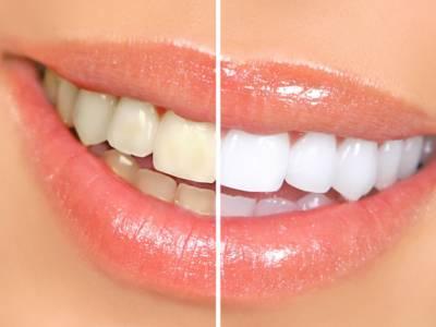 Come sbiancare i denti? Scommettiamo che questi rimedi non li hai mai provati!