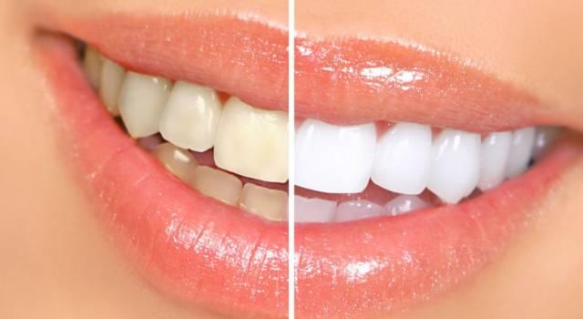 Quanto costa sbiancamento denti dal dentista