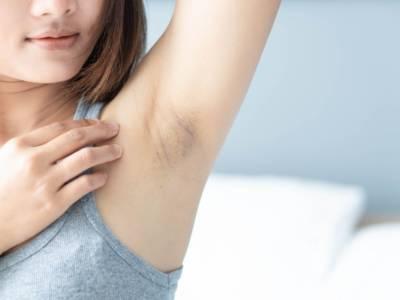 Ascelle scure con macchie: ecco i rimedi naturali per sbiancarle