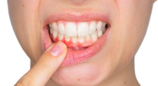 Rimedi per smalto dei denti consumato