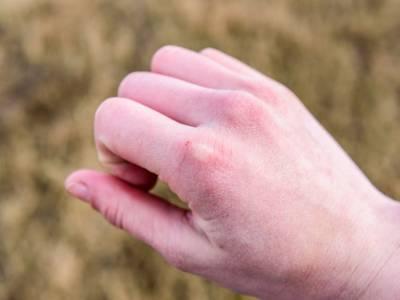 Mani screpolate e tagliate dal freddo? Ecco i rimedi da provare subito