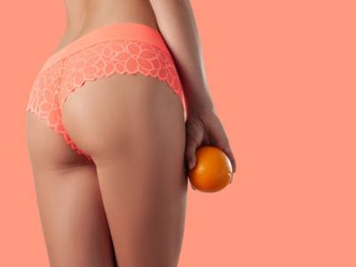 Come eliminare la cellulite (in modo naturale)