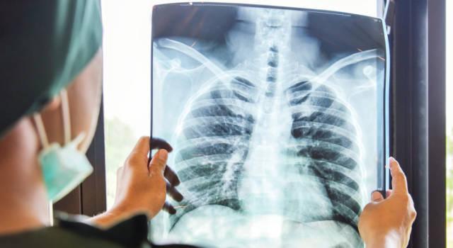 Che cos'è la polmonite bilaterale da Covid? La malattia e i sintomi