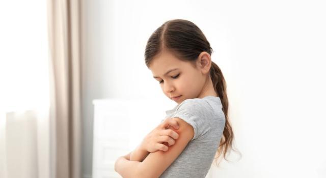 Come si presenta l'orticaria nei bambini e cosa può provocarla?