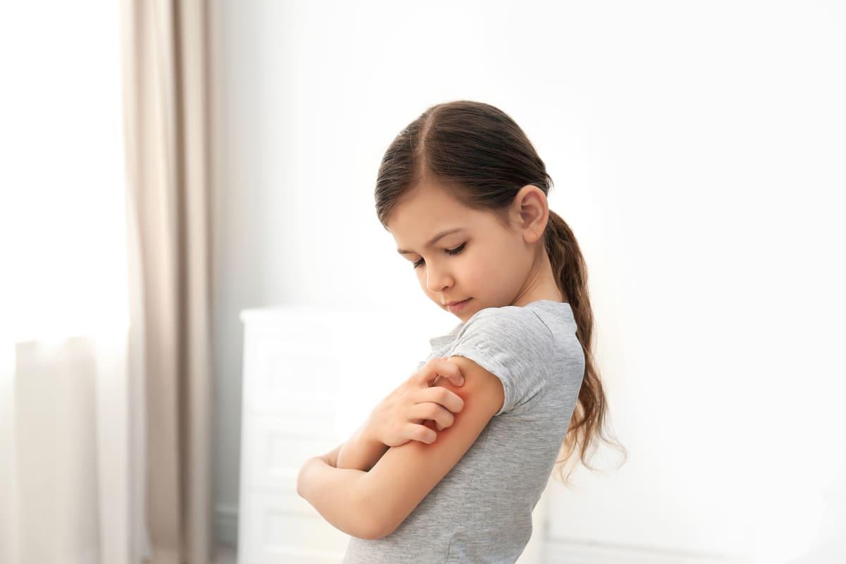Bambina che si gratta il braccio