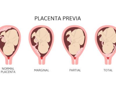 Cosa si intende per placenta previa e quali rischi comporta