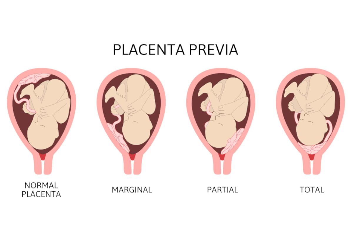 Posizioni placenta previa a confronto con placenta normale