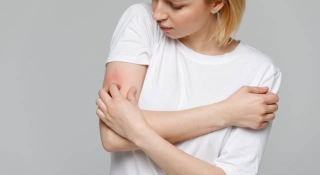 Prurito alle braccia: cause, rimedi e cura