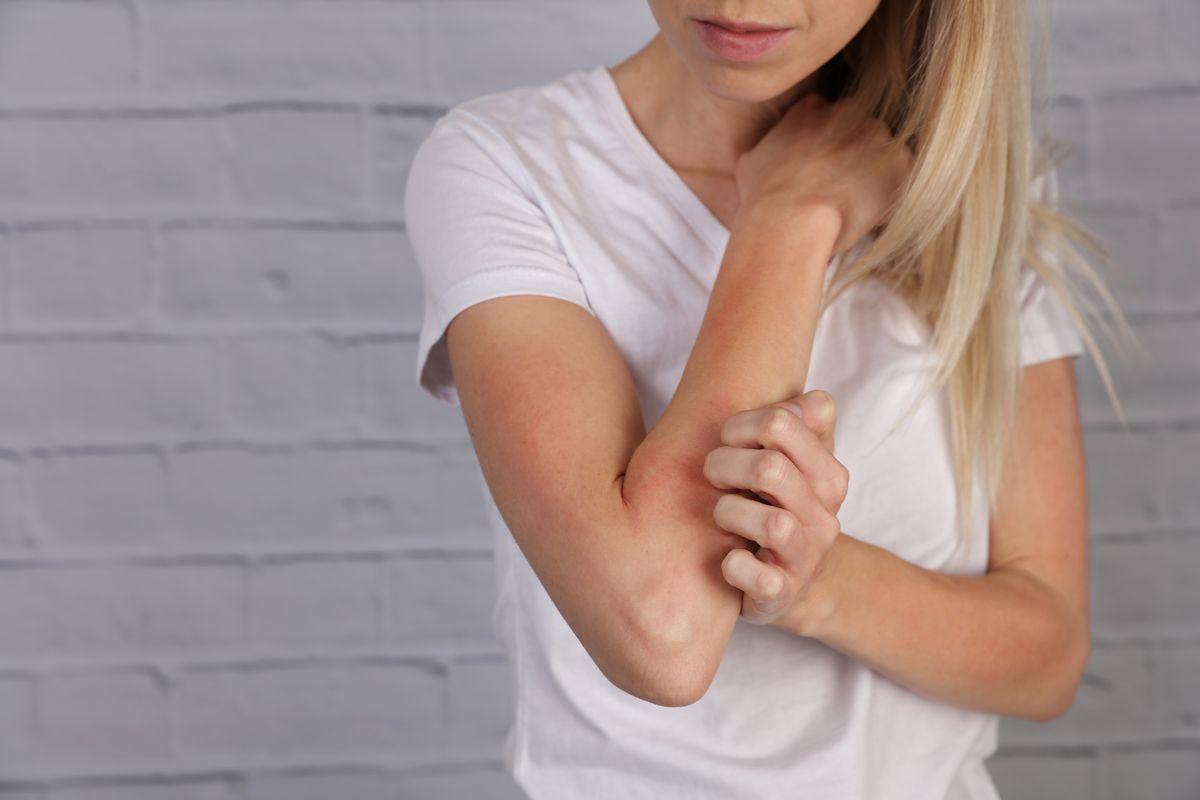 prurito braccio