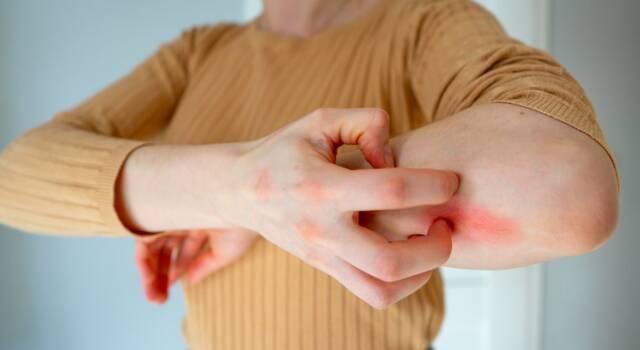 Dermatite erpetiforme, cause e sintomi: esistono rimedi naturali efficaci?