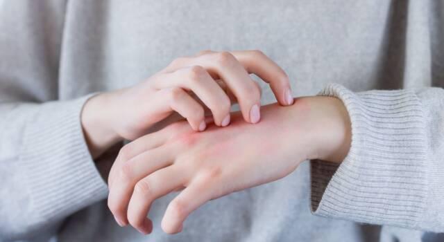 Dermatite mani, cause: quali sono i sintomi e i rimedi naturali?