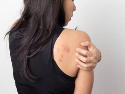 Orticaria da stress: cause, sintomi e rimedi naturali efficaci