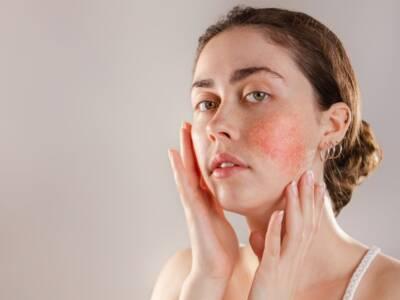 Malattie rare della pelle, quali sono quelle più contagiose