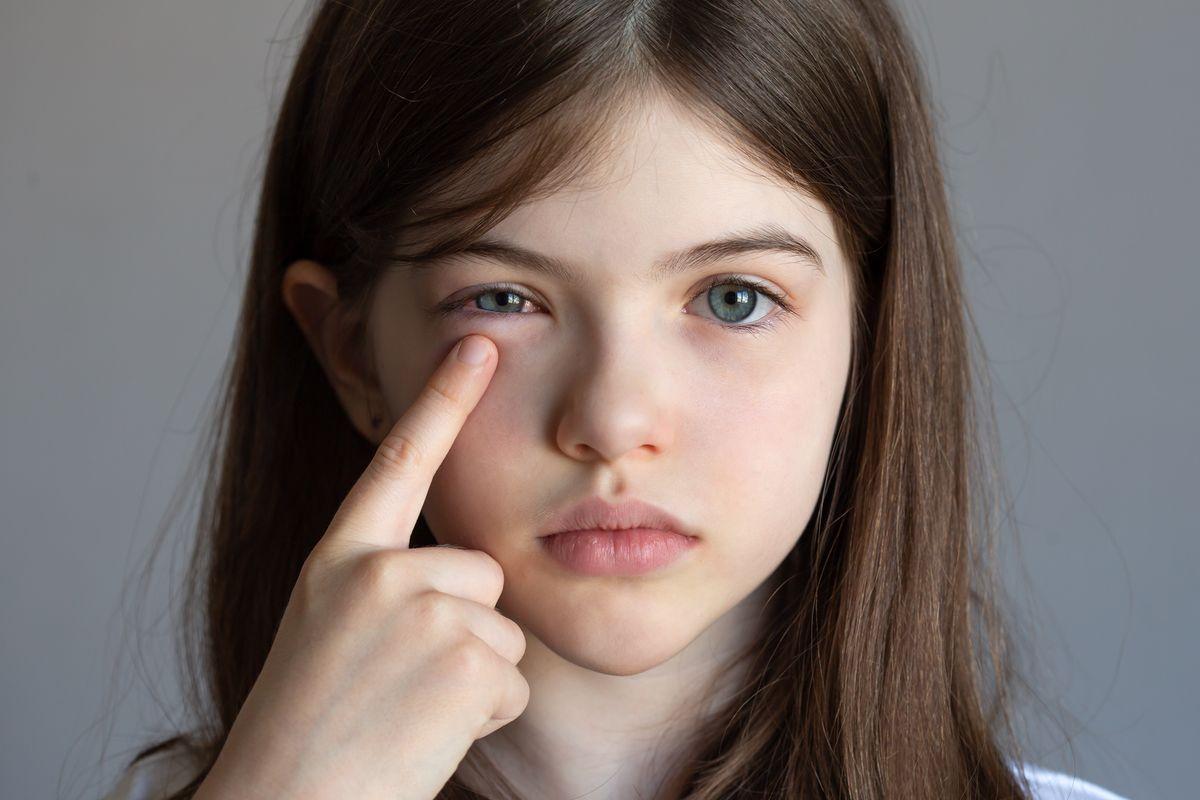Bambina con occhio gonfio congiuntivite